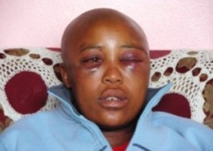Stopping Rape Used to Cure South African Lesbians